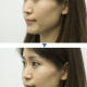 Before and after application of the Make-up Sheet (Photo: Courtesy of (...)