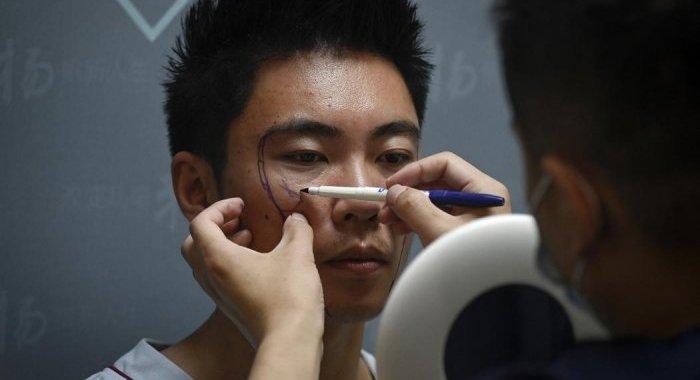 En Chine, les hommes aussi passent sous le bistouri