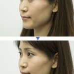 Before and after application of the Make-up Sheet (Photo: Courtesy of Panasonic)